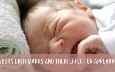 Newborn Birthmarks and Their Effect on Appearance