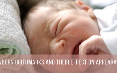 Newborn Birthmarks and Their Effect on Appearance